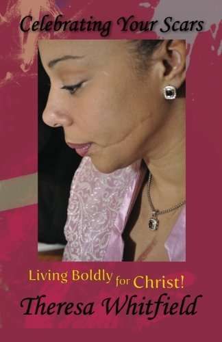 Celebrating Your Scars: Living Boldly for Christ: Theresa Whitfield