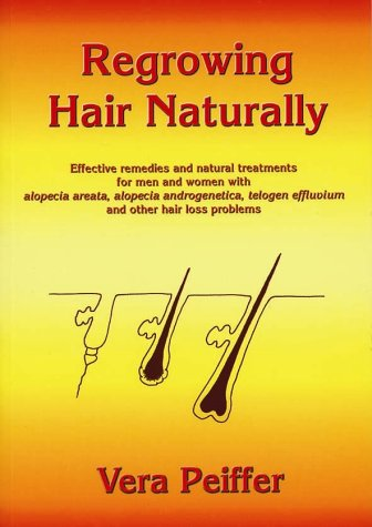 9780954722715: Regrowing Hair Naturally: Effective Remedies and Natural Treatments for Men and Women with Alopecia Areata,Alopecia Androgenetica,Telogen Effluvium and Other Hair Loss Problems