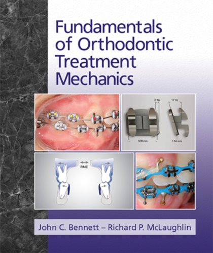 9780956455529: Fundamentals of Orthodontic Treatment Mechanics