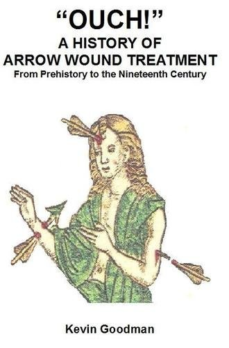 9780957137707: Ouch! A History of Arrow Wound Treatment from Prehistory to the Nineteenth Century