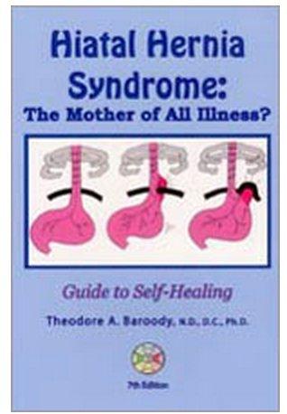 Hiatal Hernia Syndrome: Insidious Link to Major: Baroody, Theodore A.