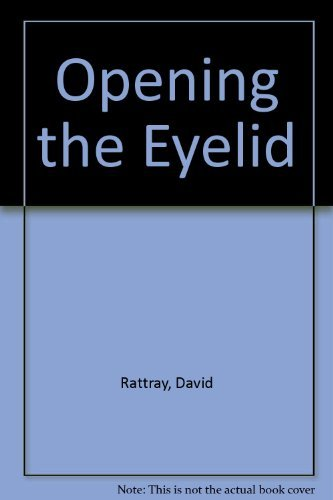 Opening the Eyelid (0962743003) by David Rattray