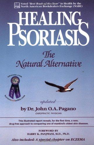 9780962884702: Healing Psoriasis: The Natural Alternative