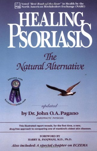 9780962884702: Healing Psoriasis: The Natural Alternative