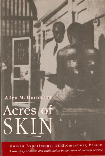 9780965696937: Acres of Skin: Human Experiments at Holmesburg Prison : A True Story of Abuse and Exploitation in the Name of Medical Science
