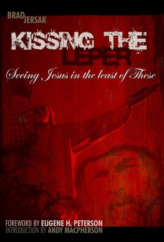 9780978017408: Kissing the Leper: Seeing Jesus in the Least of These