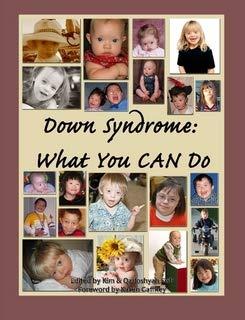 9780979496233: Down Syndrome: What You CAN Do