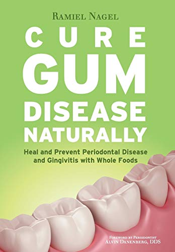 Cure Gum Disease Naturally: Heal and Prevent Periodontal Disease and Gingivitis with Whole Foods: ...