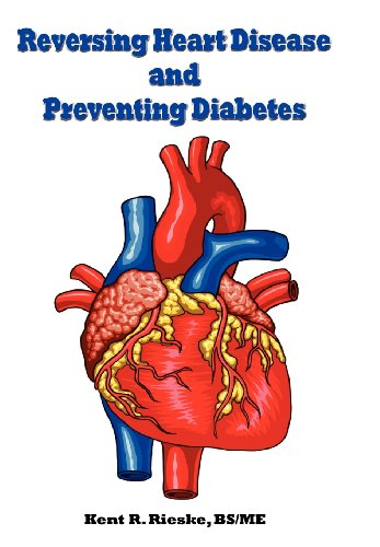 9780982848555: Reversing Heart Disease and Preventing Diabetes: Apply Science to Lower Cholesterol 100 Points; Reduce Arterial Plaque 50% in 25 Months; And Improve H