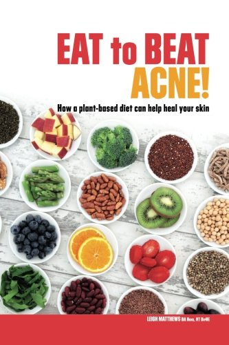 9780992022426: Eat to Beat Acne!: How a plant-based diet can help heal your skin. (Eat Your Way to Healthier Skin)