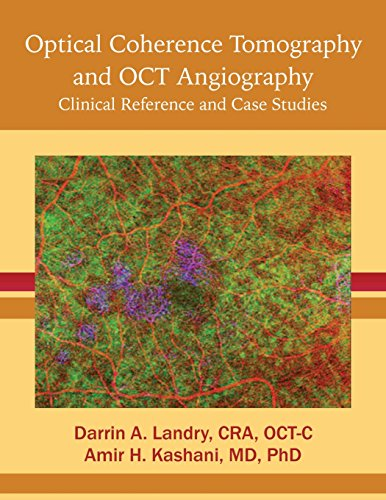Optical Coherence Tomography and OCT Angiography: Clinical Reference and Case Studies: CRA OCT-C, ...