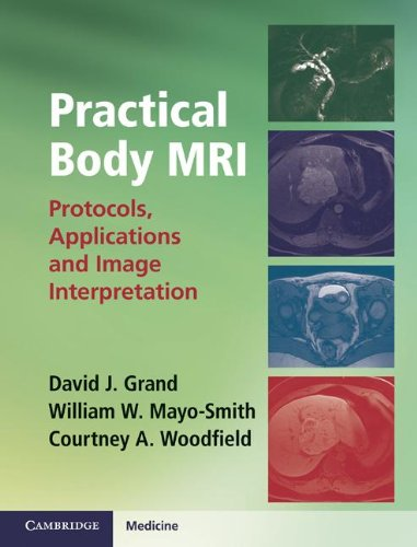 9781107014046: Practical Body MRI: Protocols, Applications and Image Interpretation