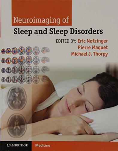 9781107018631: Neuroimaging of Sleep and Sleep Disorders