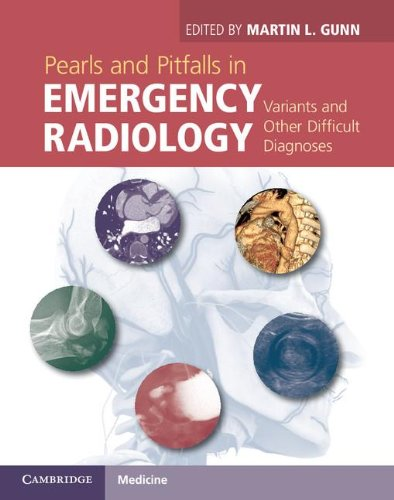 9781107021914: Pearls and Pitfalls in Emergency Radiology: Variants and Other Difficult Diagnoses