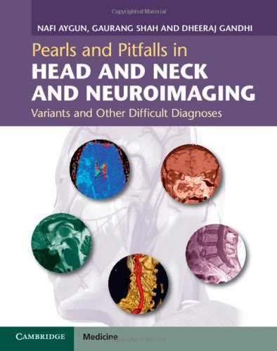 9781107026643: Pearls and Pitfalls in Head and Neck and Neuroimaging: Variants and Other Difficult Diagnoses