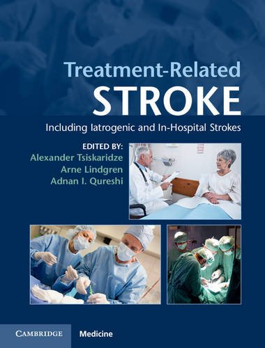 9781107037434: Treatment-Related Stroke: Including Iatrogenic and In-Hospital Strokes