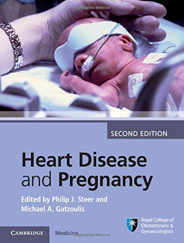 9781107095946: Heart Disease and Pregnancy