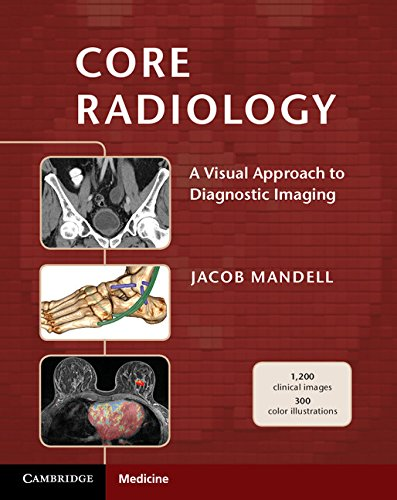 9781107679689: Core Radiology: A Visual Approach to Diagnostic Imaging