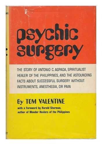 9781117593647: Psychic Surgery