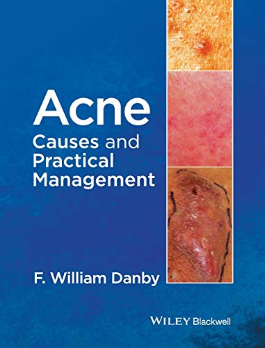 9781118232774: Acne: Causes and Practical Management
