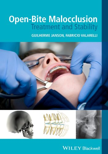 Open-Bite Malocclusion: Treatment and Stability: Guilherme Janson (Edited