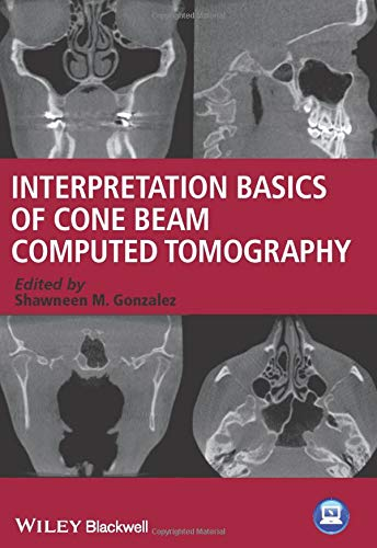 9781118381069: Interpretation Basics of Cone Beam Computed Tomography