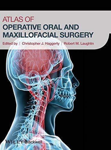 9781118442340: Atlas of Operative Oral and Maxillofacial Surgery