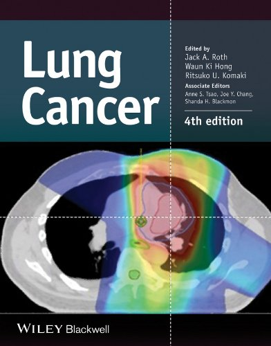 9781118468746: Lung Cancer