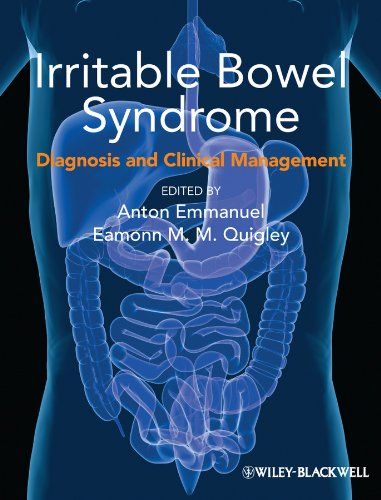 9781118538623: Irritable Bowel Syndrome: Diagnosis and Clinical Management
