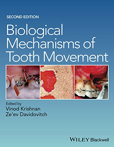 9781118688878: Biological Mechanisms of Tooth Movement