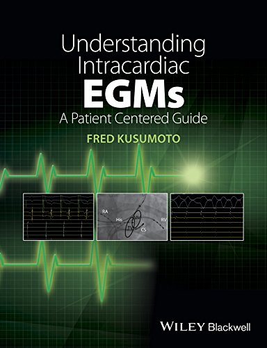 9781118721360: Understanding Intracardiac EGMs: A Patient Centered Guide