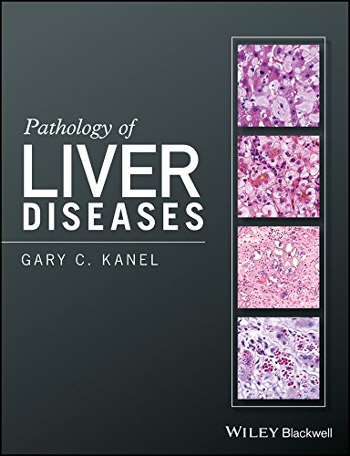 Pathology of Liver Diseases: Gary C. Kanel