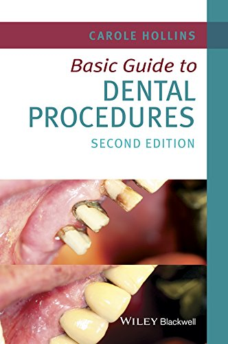 9781118924556: Basic Guide to Dental Procedures (Basic Guide Dentistry Series)