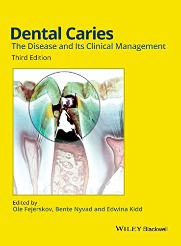 9781118935828: Dental Caries: The Disease and its Clinical Management