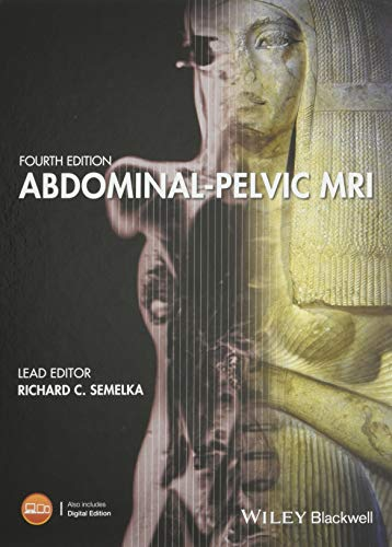 9781119012931: Abdominal-Pelvic MRI