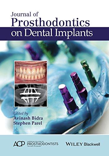 9781119115366: Journal of Prosthodontics on Dental Implants