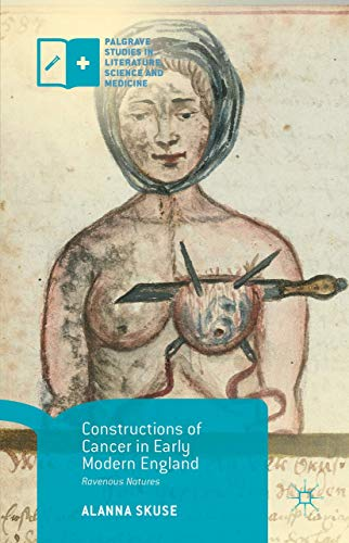 9781137569196: Constructions of Cancer in Early Modern England: Ravenous Natures (Palgrave Studies in Literature, Science and Medicine)