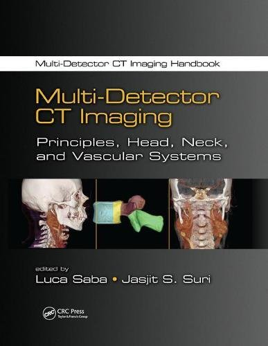 9781138076488: Multi-Detector CT Imaging: Principles, Head, Neck, and Vascular Systems