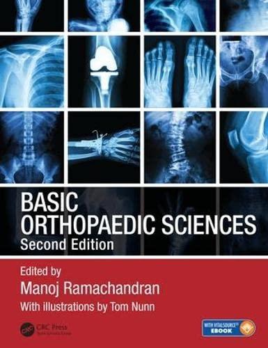 9781138091726: Basic Orthopaedic Sciences