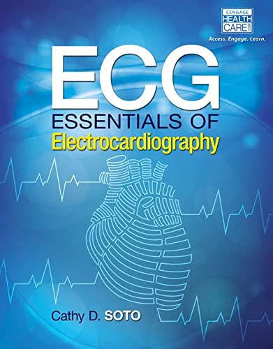 9781285180984: ECG: Essentials of Electrocardiography (Mindtap Course List)