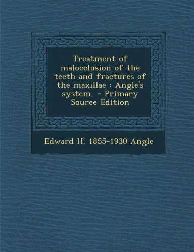 9781287875994: Treatment of malocclusion of the teeth and fractures of the maxillae: Angle's system