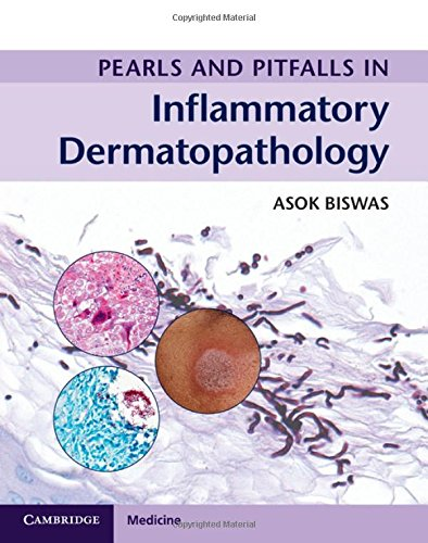 Pearls and Pitfalls in Inflammatory Dermatopathology: Asok Biswas