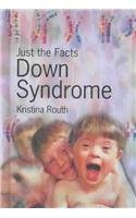 9781403451453: Down Syndrome (Just the Facts)