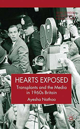Hearts Exposed: Transplants and the Media in 1960s Britain (Science, Technology and Medicine in ...