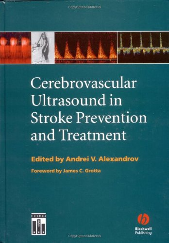 9781405103817: Cerebrovascular Ultrasound in Stroke Prevention and Treatment