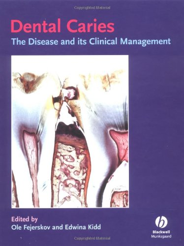 9781405107181: Dental Caries: The Disease and Its Clinical Management
