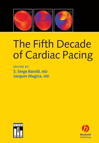 9781405116442: The Fifth Decade of Cardiac Pacing