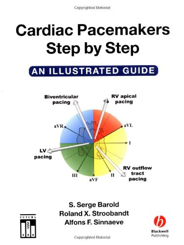 9781405116473: Cardiac Pacemakers Step-by-Step: An Illustrated Guide