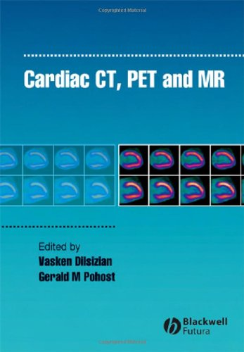 9781405124478: Cardiac CT, PET and MR