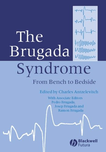 9781405127783: The Brugada Syndrome: From Bench To Bedside